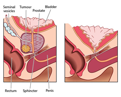 Before and after a radical prostatectomy