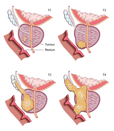 Staging of prostate cancer