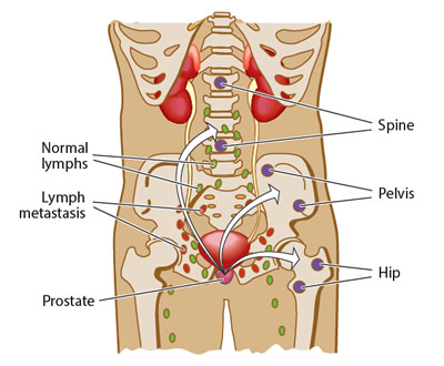 Evidence that prostate cancer has spread to other parts of the body